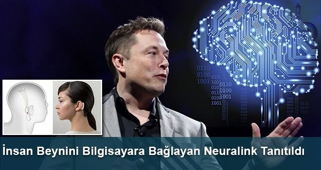 İnsan Beynini Bilgisayara Bağlayan Neuralink Tanıtıldı
