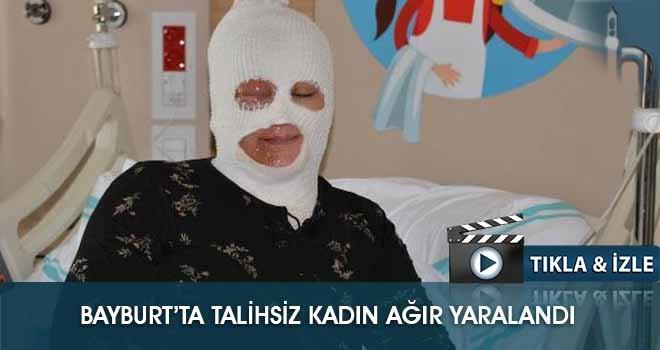 Bayburt'ta Talihsiz Kadın Ağır Yaralandı